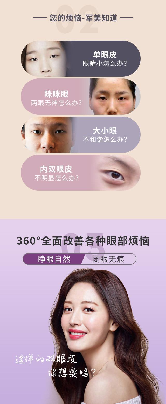割双眼皮哪种比较自然