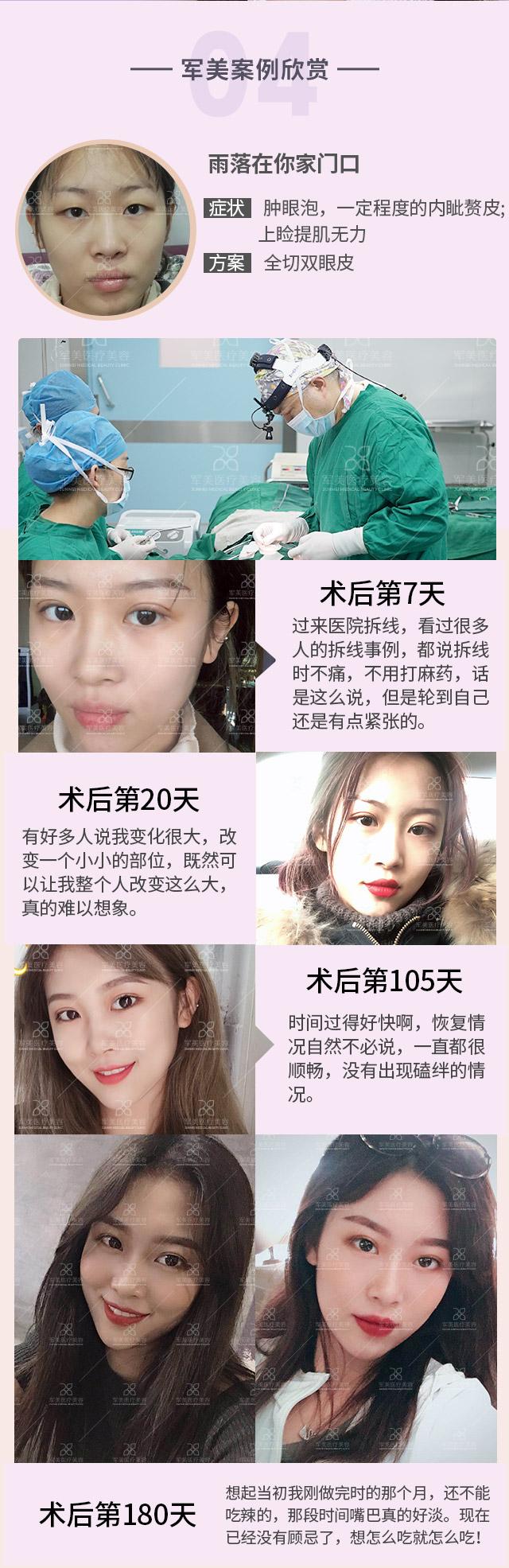 韩式双眼皮的效果